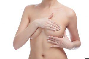 Implantes-de-mama